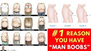 """Download ♂️ Doctor Reveals #1 Reason You Have """"Man Boobs"""" (Gynecomastia) - by Dr Sam Robbins Video"""