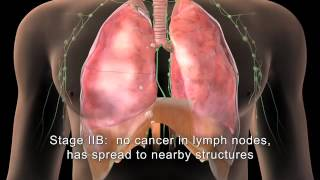 Download [English] MAKNA Getting to know Lung Cancer Video