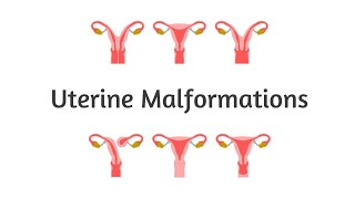 Download Uterine Malformations (Mullerian) Video