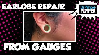 Download An Earlobe Repair After Gauges Video