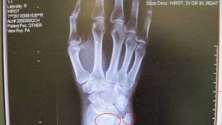 Download The story of my broken wrist Video