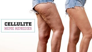 Download How To Get Rid Of Cellulite Naturally | Glamrs Skin Care Video