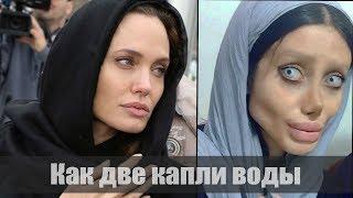 Download 50 ОПЕРАЦИЙ ЧТОБЫ СТАТЬ как Анджелина Джоли Video