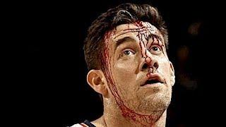 Download NBA ″Bloodiest″ Injuries Video