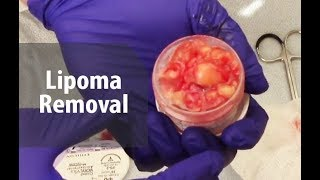 Download Tricky Lipoma Removal   Dr. Derm Video
