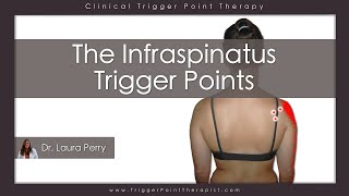 Download The Infraspinatus Trigger Points Video