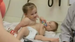 Download Conjoined Twins Successfully Separated Video
