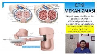 Download Sertleşme Bozukluğu-8 Penise Vakum Tedavisi Video