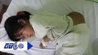 Download Phẫu thuật thành công cho bé gái 'người vượn' | VTC Video