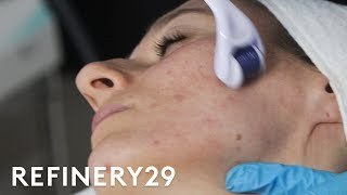 Download Why Microneedling Is The Best Acne Scar Treatment | Macro Beauty | Refinery29 Video