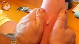 Download Best Biggest Pimple Pop Ever , Removal Cyst at home Very funny [cyst] Video