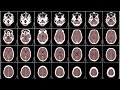Download Mapping the Dynamic Brain Video