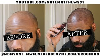 Download How To Get Your Hairline Back | From Bald To Edge Up | Hairline Restoration Video