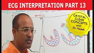 Download EKG or ECG Interpretation - Part 13/20 Video