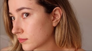 Download One Year Off Accutane: My Acne Is Back. An Emotional Update Video