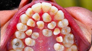 Download All My Teeeth! Hyperdontia - Secrets to White Teeth! 😃😄😄😬 Video