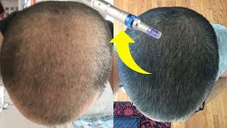 Download BEST MICRONEEDLING DEVICE FOR HAIR GROWTH! Video
