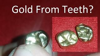 Download Precious Metal Refining & Recovery, Episode 17: Teeth Video