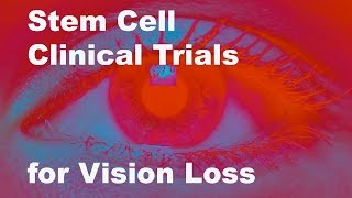 Download Eyeing Stem Cell Therapies for Vision Loss Video