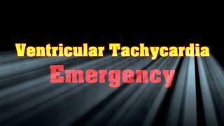 Download Ventricular Tachycardia Emergency Video