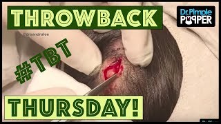 Download Reminiscing with Dr. Pimple Popper - TBT Video