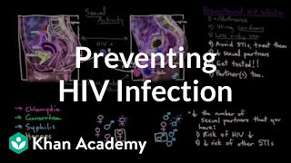 Download Preventing an HIV infection | Infectious diseases | NCLEX-RN | Khan Academy Video