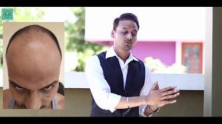 Download HAIR TRANSPLANT IN INDIA (2018) : A MUST WATCH VIDEO FOR ALL WHO ARE SUFFERING FROM BALDESS Video
