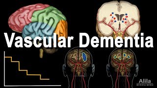 Download Vascular Dementia Pathology, Animation Video