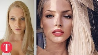 Download 10 Hot Instagram Stars Before Plastic Surgery Video