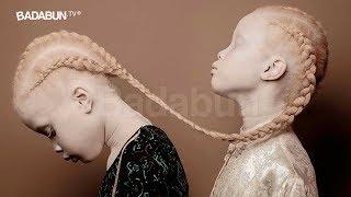 Download El escalofriante caso de las gemelas albinas. La historia más aterradora del 2017 Video