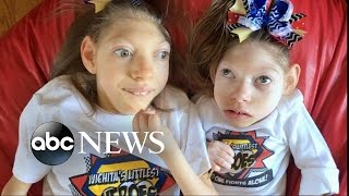 Download Kansas Parents of 2 Girls With Microcephaly Share Joys, Struggles of Family Life Video
