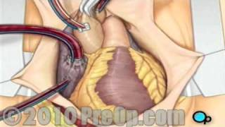 Download Coronary Artery Bypass (CABG) Surgery Video