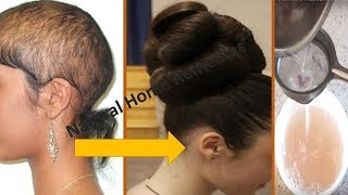 Download ⭐AWARDED BEST HAIR GROWTH REMEDY TO GROW HAIR IN 4 WEEKS    FIX HAIR FALL    Natural Home Remedies Video