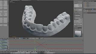 Download How to make your own braces on a budget Video