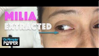 Download Dr Sandra Lee presents 3 patients with milia Video