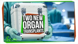 Download Two Unbelievable New Transplants That Actually Worked Video