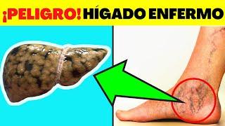 Download 9 SÍNTOMAS en el Pie de una Mala Salud en el HÍGADO Video