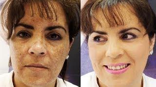 Download cómo cubrir manchas / how to cover hyperpigmentation & melasma Video