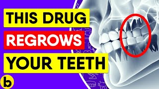 Download Scientists Discover Drug That Fixes Cavities & Regrows Teeth Video