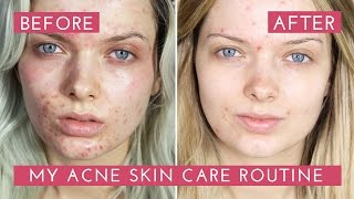 Download My Acne Skin Care Routine // How I Cleared My Acne // MyPaleSkin Video