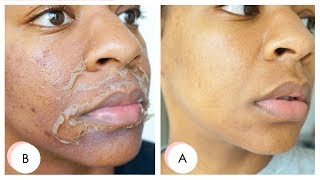 Download I GOT A CHEMICAL PEEL ! Full Process + Results | Remove Dark Marks, Enlarged Pores & Wrinkles Video