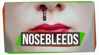 Download Why Do We Get Nosebleeds? Video