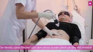 Download Altın İğne Radyofrekans İle Çatlak Tedavisi Antalya (Intracell), DK Klinik Video