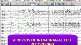 Download INTRACRANIAL DEPTH ELECTRODE RECORDING Video