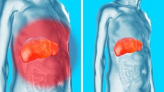 Download Remove Toxins from Your Kidneys, Liver and Bladder Gently Yet Effectively Video