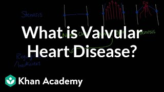 Download What is valvular heart disease? | Circulatory System and Disease | NCLEX-RN | Khan Academy Video
