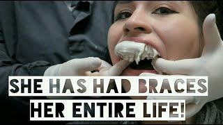 Download GETTING BRACES OFF AFTER 15 YEARS FULL EXPERIENCE! Video