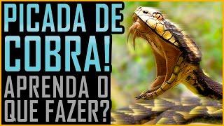 Download Picada de Cobra - O que Fazer - (Butantan / Venenosa / Peçonhenta) Video