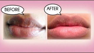 Download How to Lighten Dark Lips Naturally Video