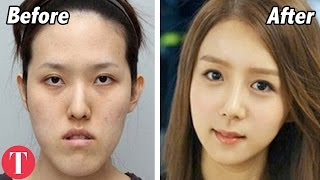 Download 10 Disturbing Facts About Koreas Billion Dollar Beauty Industry Video